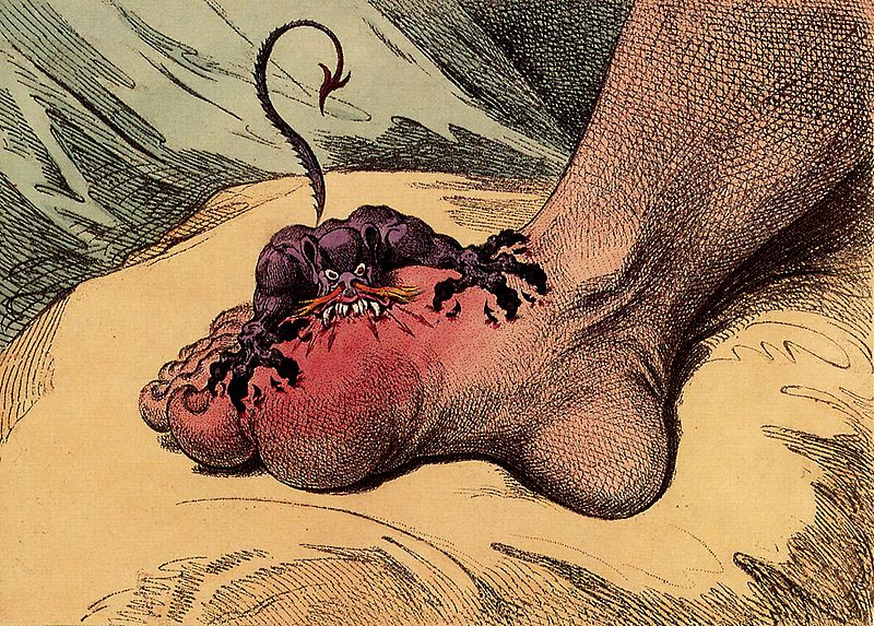 Gout, a 1799 caricature by James Gillray.